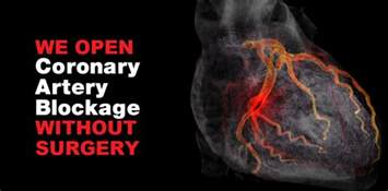 intestinal blockage picture 18