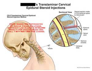can epidural injection effect an erection picture 6