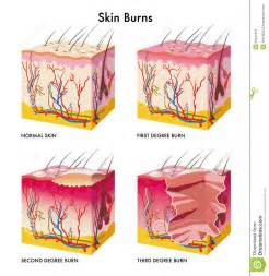 burning pricaling of the skin picture 1