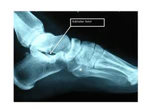 subtalar joint picture 1