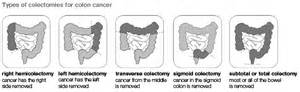 colon surgery proceedure picture 19