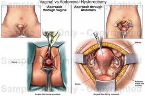anatomy and physiology of cesarean picture 6