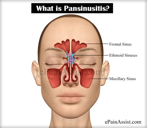 pain in sinus area,mouththroat picture 17