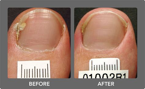 nail fungus laser treatment oklahoma picture 7