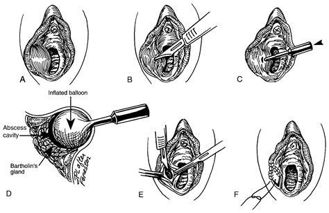 alternative medicine bartholin cyst picture 3