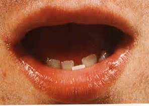 lip cancer photo picture 6