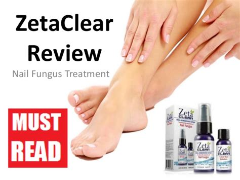 zetaclear nail solution picture 1