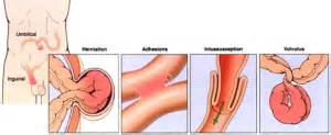 intestinal disorder picture 3