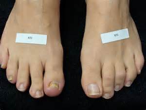 toenail fungus laser treatments in indiana picture 1