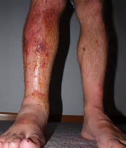 skin rash with swelling picture 9