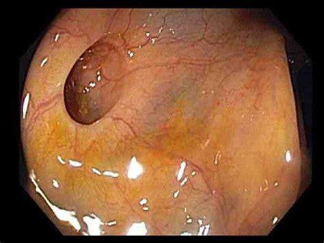 colon pockets picture 3