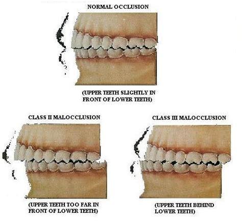 orthodontics. reason for diastema between upper anterior h picture 10
