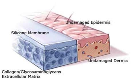 artificial skin integra picture 6