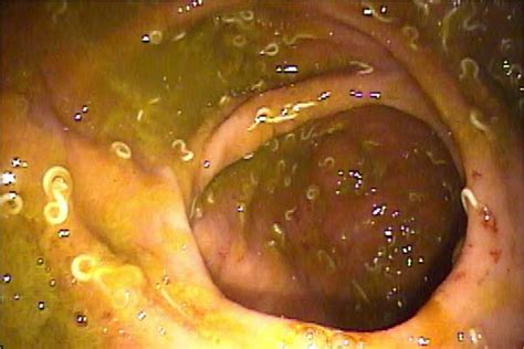 Colon and intestines parasites picture 7