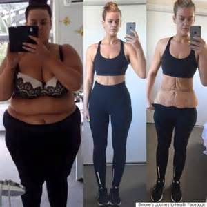 lose skin after weight loss picture 1