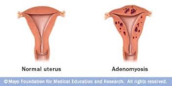 herbal uterus ivf picture 18