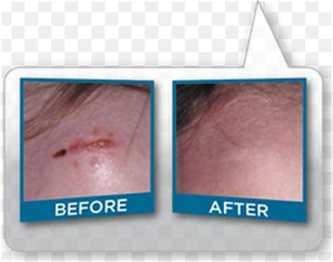 agnijith - keloid removal cream in qatar picture 5