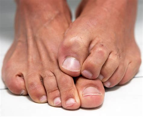 hide mens nail fungus picture 2