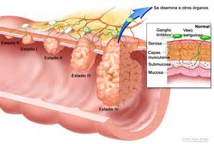 Celiac colon cleanse picture 14