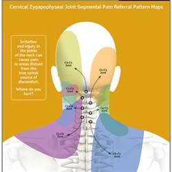 can h cause neck pain picture 3