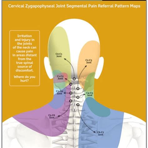 can h cause neck pain picture 1