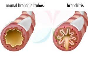 bacterial infection of the bronchial tubes picture 10
