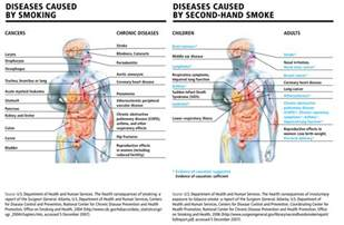 second hand smoke graves disease picture 5