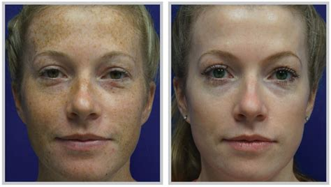 bbl laser for acne picture 3
