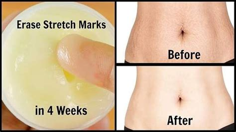 stretch marks magic chant picture 2