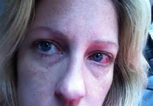 herpes contagious picture 7