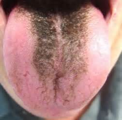 does garlic help white spot on tongue picture 14