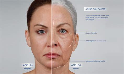 aging face picture 7