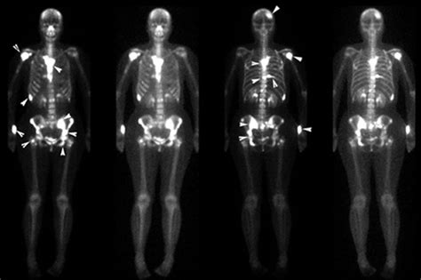 Prostate bone metastasis picture 7