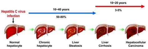 liver failure progression picture 9