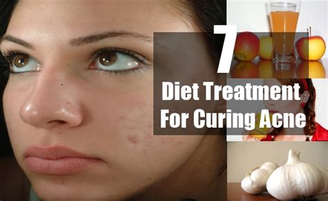 food cures for acne picture 7