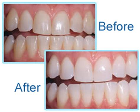 cost to whiten teeth picture 14