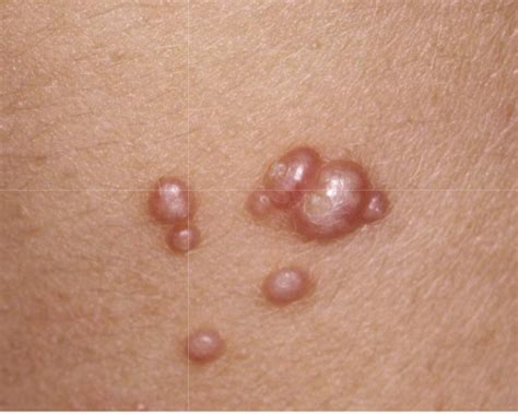 skin rashes warts picture 9