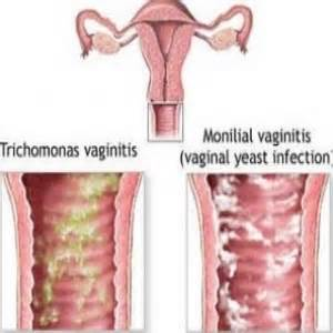 what are the symptoms of bacterial vaginosis picture 5