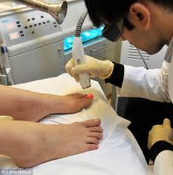 fungus on the toe nails picture 13