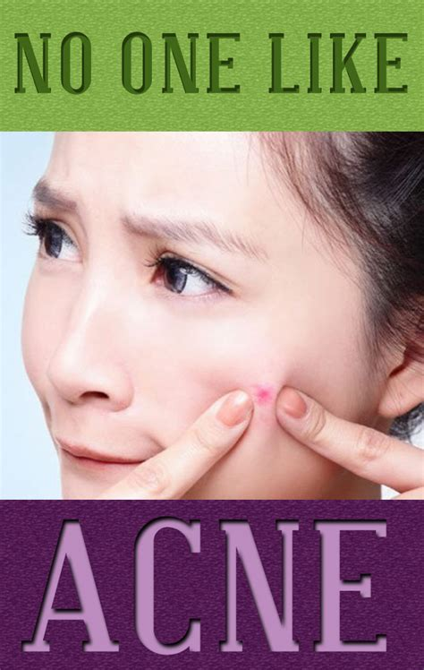 quick cures for acne picture 6