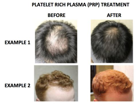 androgenetic alopecia and picture 10