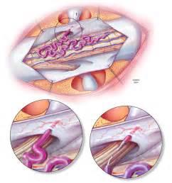 fistula vascular bladder picture 10