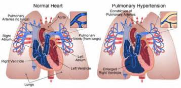 Pulmonary hypertension picture 6