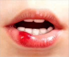 lip ulcers picture 3