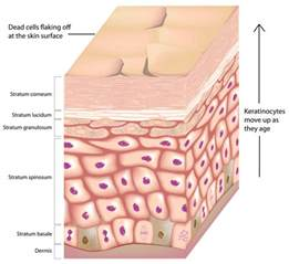 information about acne picture 7