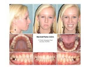 correcting h from overbite picture 15
