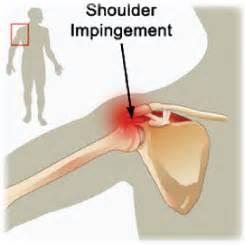 joint impingement syndrome shoulder diagnosis treatment picture 3