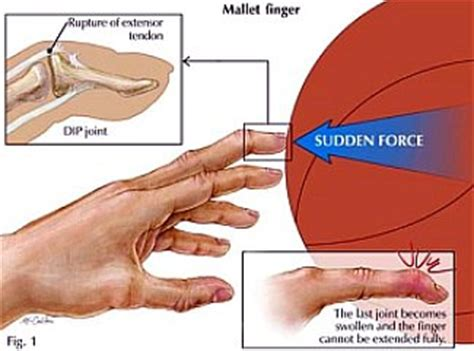 joint pain in fingers picture 11