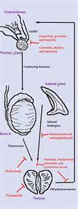 Prostate cancer pathophysiology picture 5