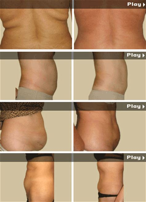 fat reduction injections gauteng picture 14